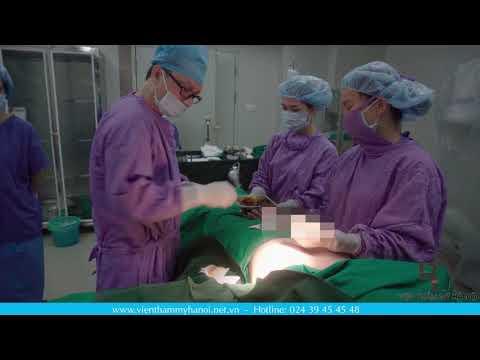 Trực Tiếp: Phẫu Thuật Nâng Ngực Nội Soi - Thẩm mỹ Viện Hà Nội