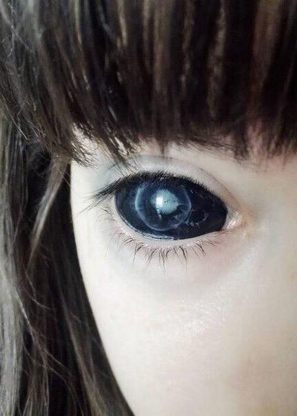Татуировка глазных яблок стоила полячке Александре зрения - она ослепла на один...