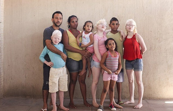 Фотографии уникальной бразильской семьи По статистике, на 17 000 обычных людей приходится один альбинос.А в этой обычной бразильской семье растут пятеро детей, трое из которых родились