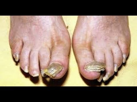 Even The Doctors Are Amazed Soak Your Feet In One Of These Mixtures And Get Rid Of Toe Nail Fungus
