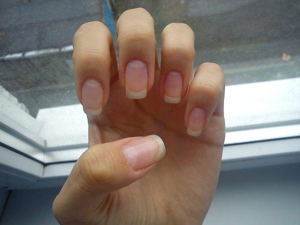 Как сделать чтобы быстро росли ногти за неделю 373