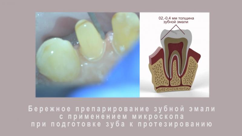 Протезирование зубов с использованием дентального микроскопа