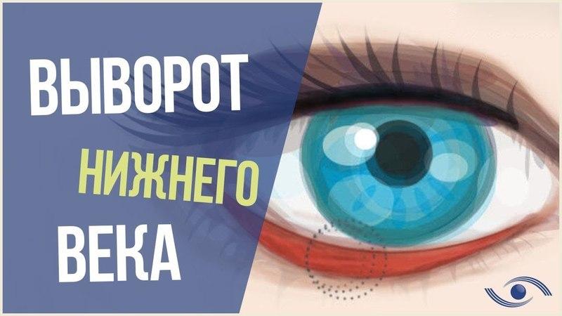 Выворот Века (Эктропион). Лечение выворота века в Новосибирске. Оперативное лечение эктропиона