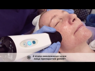 4 этапа омоложения кожи лица препаратом GeneO+