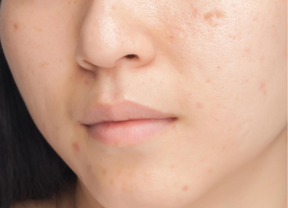 Крем-прополис можно использовать для лечения акне.