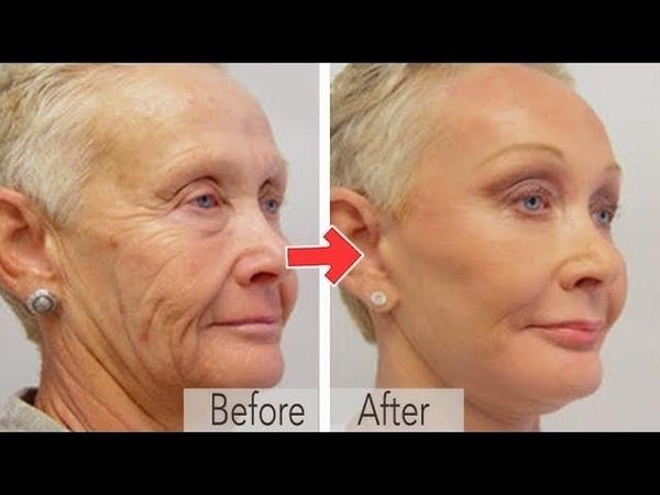 ✅Эта маска от морщин поражает своим эффектом! Не «выкидывайте» деньги на салоны красоты!
