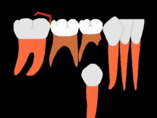 Сменный прикус 2. Пропедевтика ортодонтии