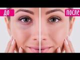 💥Топ 5 эффективных лайфхаков- круги и мешки под глазами