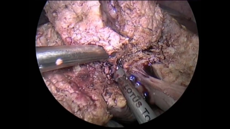 BOWA-LOTUS-LIVER-WEDGE-RESECTION-SEG-4B Ультразвуковая хирургическая система Bowa Lotus