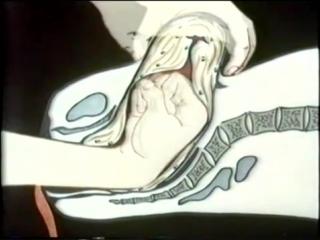 Акушерские кровотечения при гипотонии матки © obstetric hemorrhage with hypotension uterus