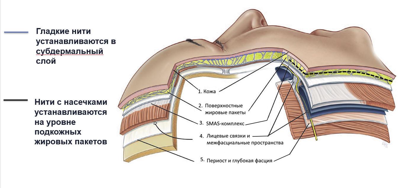 Выбор техник имплантации определяется целями и задачами, которые необходимо достигнуть при проведении процедуры нитевого лифтинга. Одна из наиболее перспективных методик тредлифтинга для ремоделирования кожи – введение мезонитей на разных анатомических уровнях