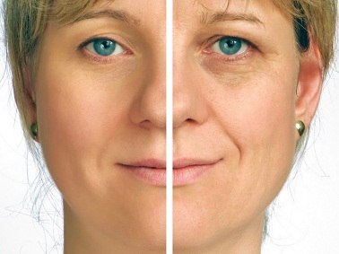 Особенности кремов для глаз после 50 лет