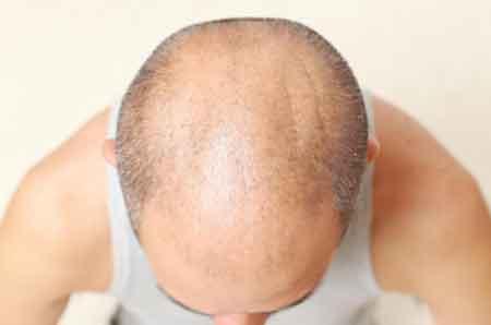 Принимая миноксидил, люди с выпадением волос, скорее всего, не смогут восстановить рост волос в залысинах кожи головы.
