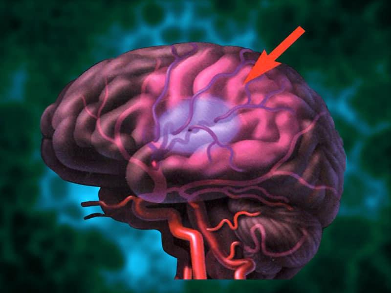 Ноотропы работают за счет увеличения снабжения мозга кислородом.