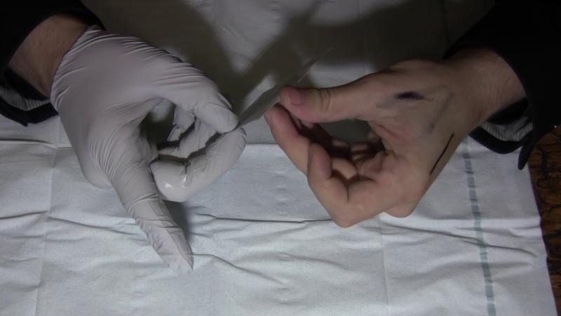 Киборгизация и биохакинг. RFID-импланты. Имплантация метки.