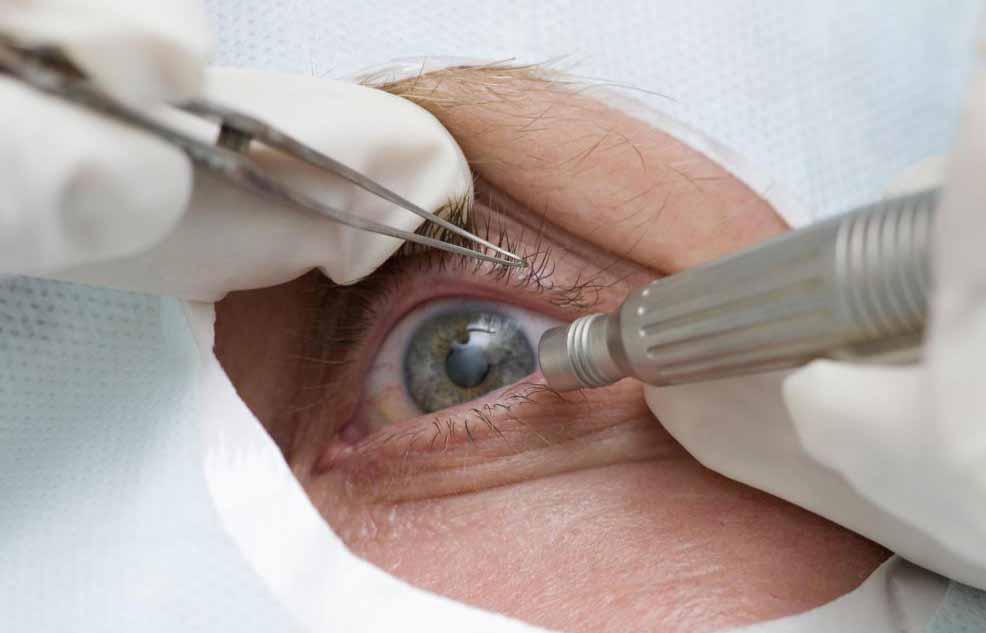 Определенные типы косметических операций, которые касаются области вокруг глаз, могут считаться украшающими внешность.