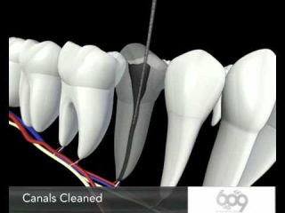 Root Canal Procedure 3D Animation - Endodontics Los Angeles