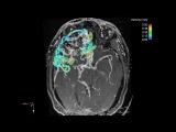 Intra-cranial 4D flow MRI - Complex 3D blood flow dynamics in a large AVM