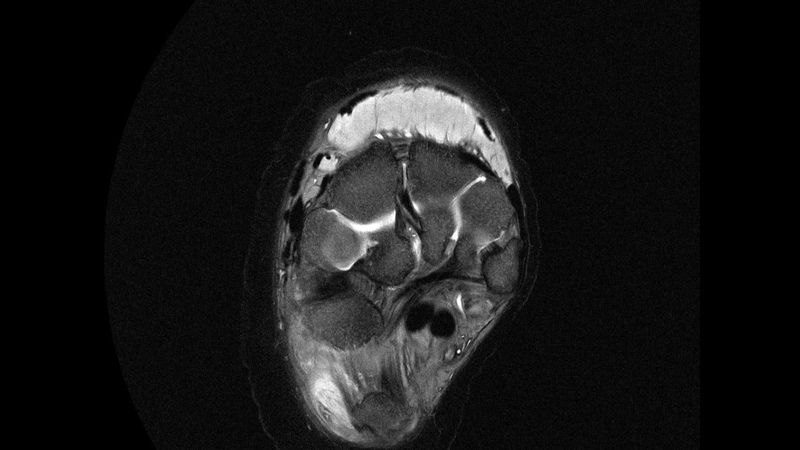 MRI scan of elephant right hind foot