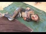 Тела разорванные осколками в Луганске