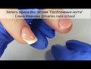 Проблемные ногти. Запись трансляции в Инстаграм