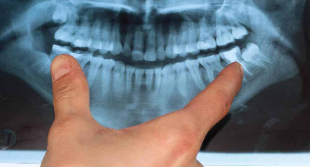 Зубы мудрости прорезаются на концах линии челюсти в позднем подростковом возрасте.