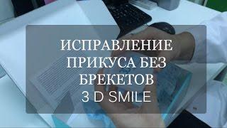 Выравнивание зубов без брекетов Каппы 3D Smile