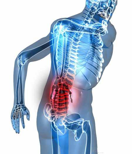 Человеческое тело, с областью, главным образом затронутой болью в пояснице, показанной красным.