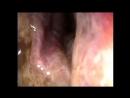 Пищеводо-трахеальный свищ