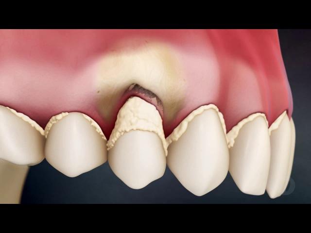 Зубной налёт и камень основная причина удаления зуба