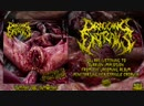 DRAGGING ENTRAILS - Ovarion Implosion