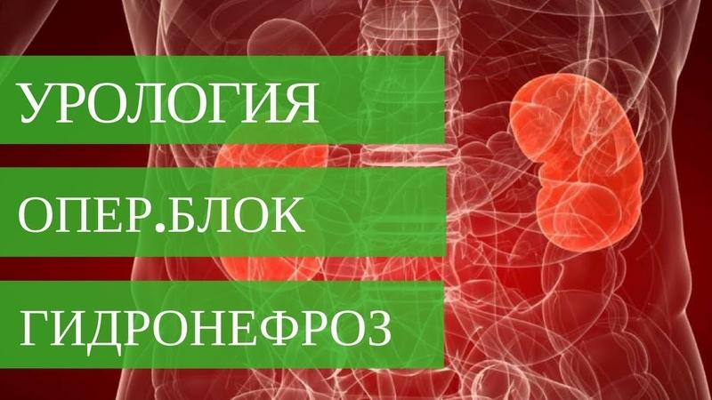 ГИДРОНЕФРОЗ ПОЧКИ оперирует Стаховский А Э Диагностика и лечение патологий почек