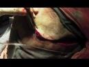 Операция Трепанация черепа Удаление опухоли головного мозга. 18