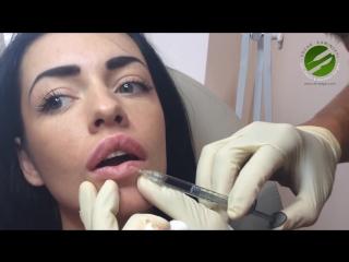 Увеличение губ. Lip Augmentation (Каминский Эдгар)