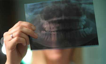 Рентген является одним из тестов и процедур, необходимых для установки временных зубных протезов