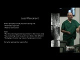 SCS Implantation - Brett R. Stacey, M.D.