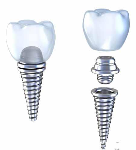 Отторжение зубного импланта из-за инфекции.
