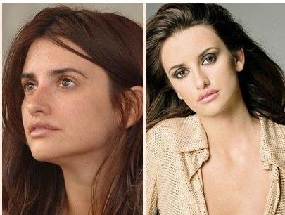 Что такое инъекции Ботокса (Botox ) противопоказания.