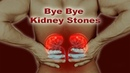 Only 1 ingredient get rid of kidney stones overnight""