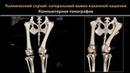 Коррегирующая деротационная остеотомия бедренной кости и транспозиция шероховатости большеберцовой кости при лечении двустороннего латерального вывиха коленной чашечки у собаки