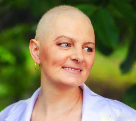 Лучевая терапия может вызвать выпадение волос.