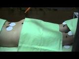 Видео Лечение бесплодия без операции и бесплатно. В домашних условиях пиявками