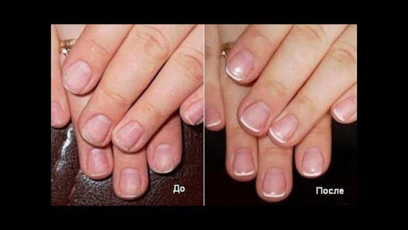 КРЕПКИЕ и КРАСИВЫЕ НОГТИ ЗА ДВЕ НЕДЕЛИ - Fito Nails System!