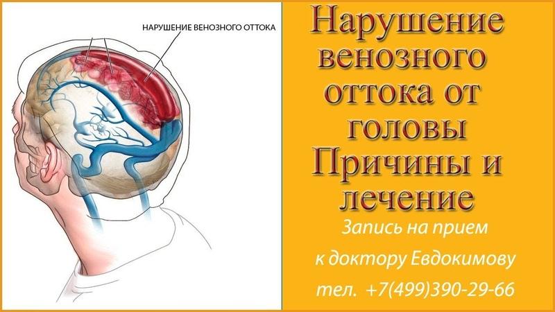 Нарушение венозного оттока головного мозга по позвоночным венам Причины нарушения венозного оттока
