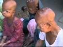 Children Living With Progeria