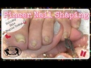 👣 Pedicure Tutorial How to Cut and Shape Pincer Toenails at Home 👣