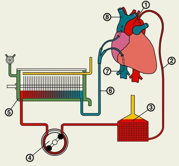 с искусственным сердцем. vysokie texnologii В Казахстане выписан из больницы первый пациент с искусственным сердцем.