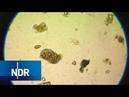 Zerkarien und Amöben trüben den Badespaß | Visite | NDR
