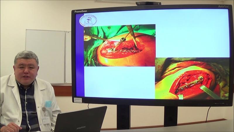 Лекция: «Применение высокотехнологических методов лечения переломов в современной травматологии»