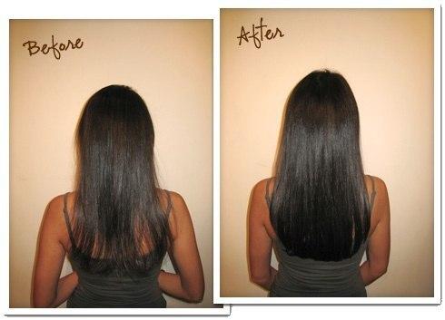 Аппаратное лечение волос и кожи головы